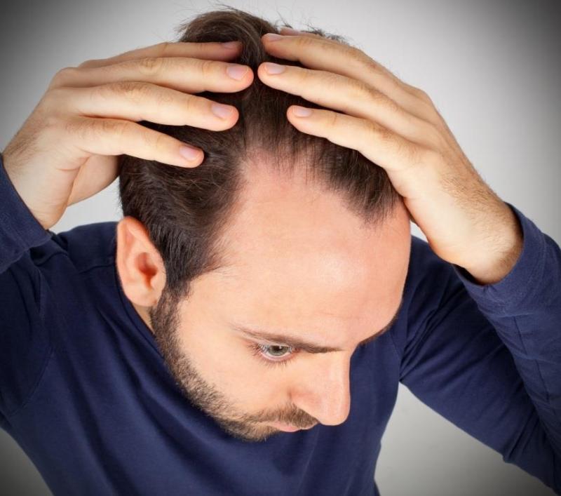 zakola zwiastują problemy z łysieniem